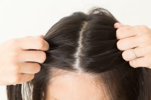 髪の毛 ダメージ