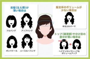前髪(生え際)の薄毛は前髪を増やすかおでこを出してカバー